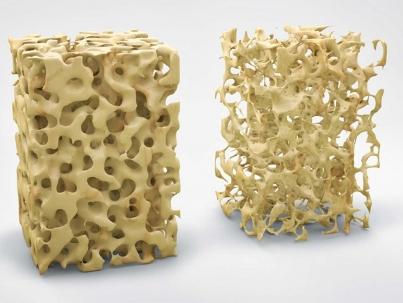 Ossa - Osteoporosi - MOC test
